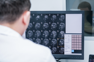 Doctor analyzing images from a MRI. TryMunity.