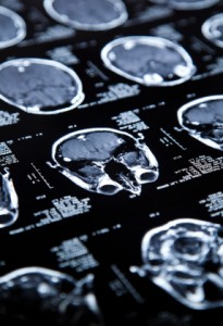 What Signifies a Brain Injury as Traumatic?