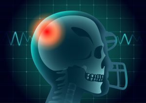 Traumatic brain injuries are caused by falls, accidents, and more.